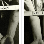 U.S. service members were intentionally exposed to toxic agents, such as nitrogen mustard, during World War II. Photo courtesy of the Naval Research Laboratory.